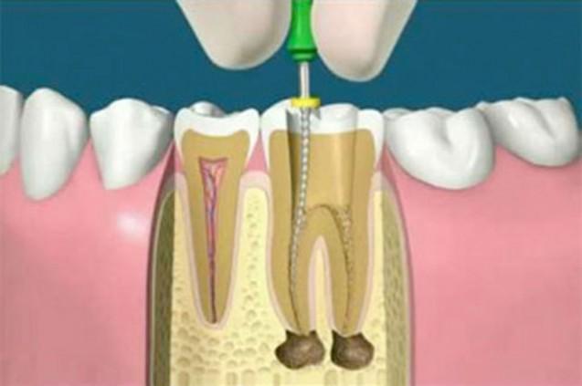 รักษารากฟัน โดย dental chiangmai clinic