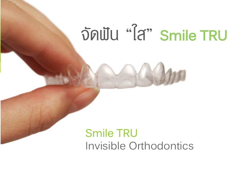 จัดฟันแบบใส เชียงใหม่ โดย cm dental clinic